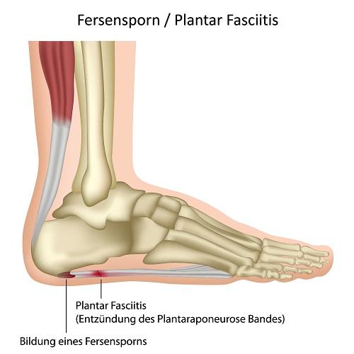 Schmerz In Der Fußsohle