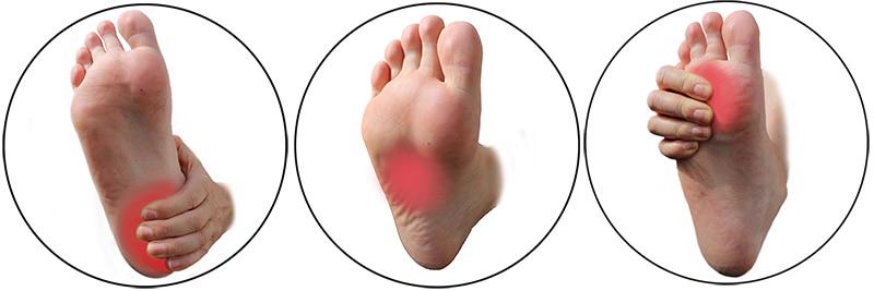 Schmerzen in der Fußsohle